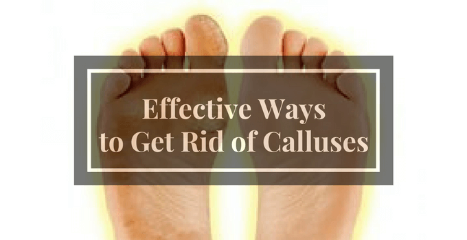 Effective Ways to Get Rid of Calluses