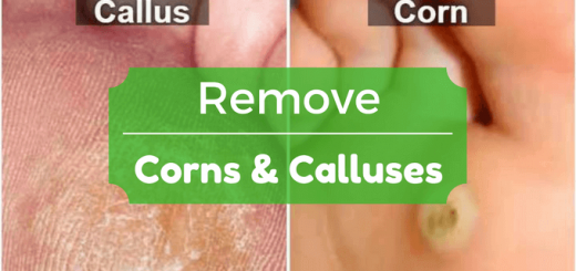 How To Successfully Remove Corns And Calluses On Feet And Skin