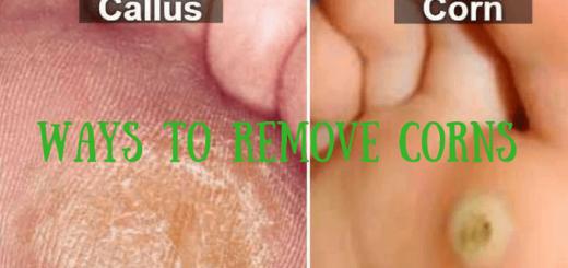 Ways to Remove Corns