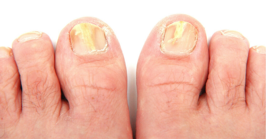 How to Get Rid of Toenail Fungus Dr Oz Recommends Easy Steps