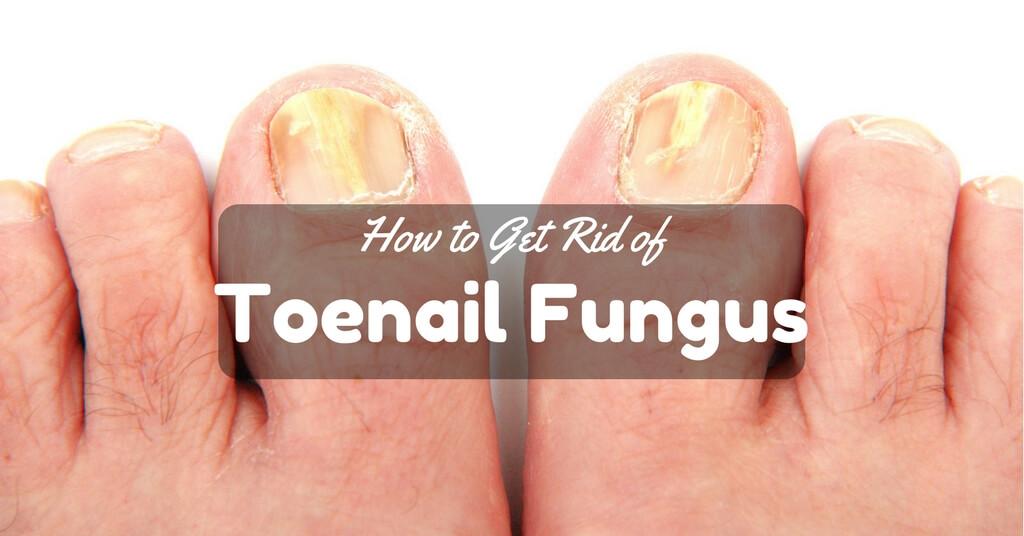 How to Get Rid of Toenail Fungus Dr Oz