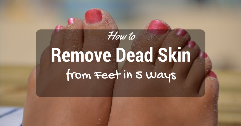 How to Remove Dead Skin from Feet in 5 Ways
