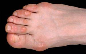 foot corns