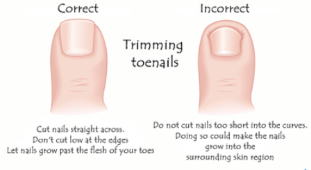 Trim your toenails