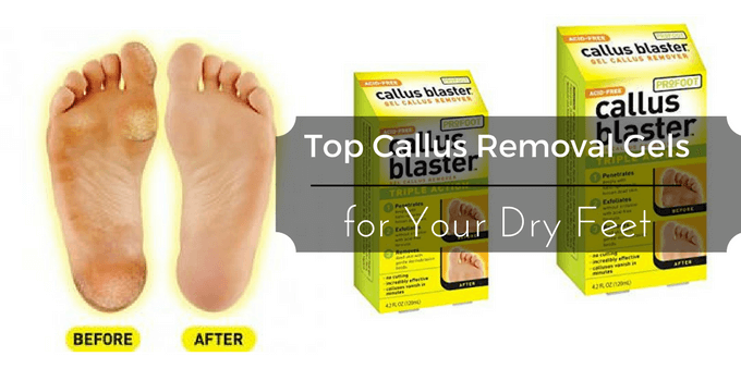 Best Callus Removal Gels for Your Dry Feet