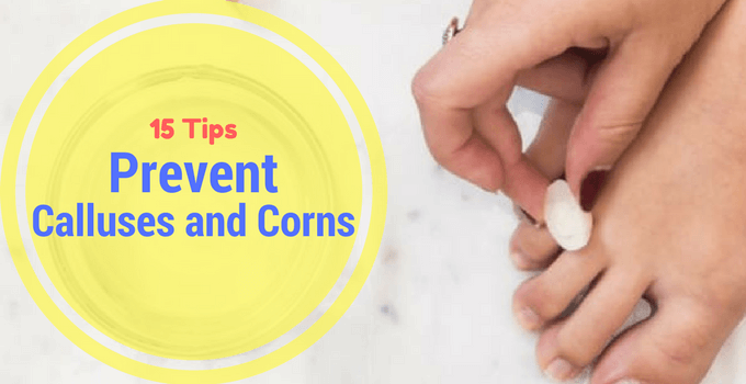 15 Tips to Prevent Calluses and Corns