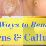 35 Effective Ways of Getting Rid of Corns and Calluses from Feet or Hands for Fast Relief