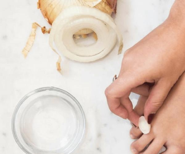 onion and white vinegar corn calluses