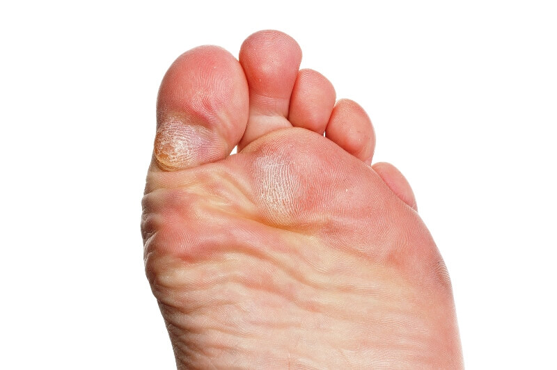 Removes calluses on your feet