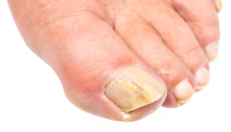 Detects signs of nail diseases