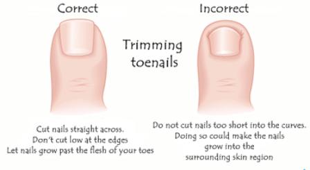 Trim your toenails