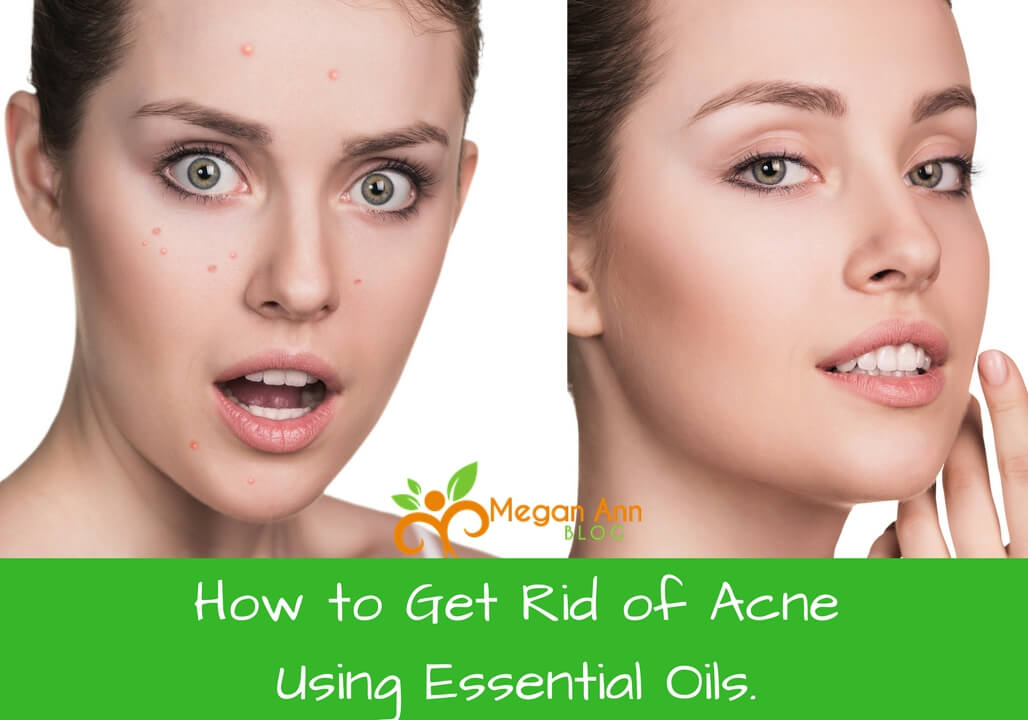 How to Get Rid of Acne Fast and Naturally Using Essential Oils