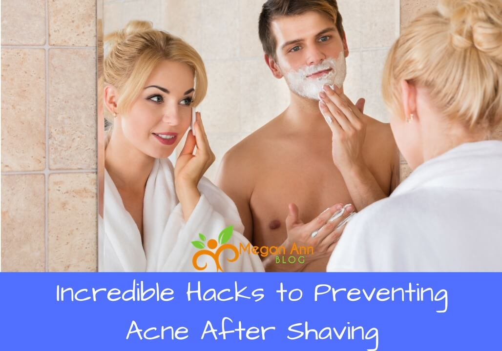 Prevent Acne After Shaving